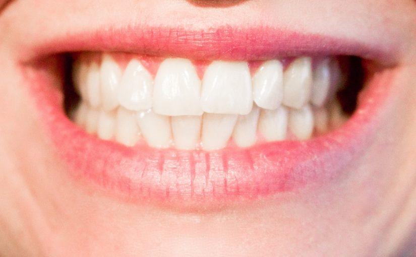 Nowoczesna technologia używana w salonach stomatologii estetycznej może spowodować, że odzyskamy śliczny uśmieszek.